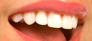 Cosmetic Dentistry Richmond BC